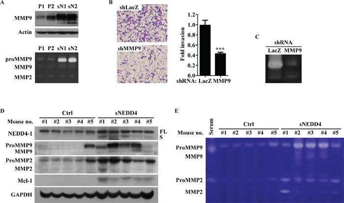 sNEDD4 promotes tumor invasion through MMP9.