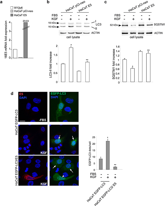 16E5 inhibits KGF-induced autophagy.