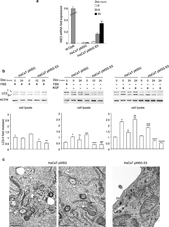Impairment of autophagy in cells stably expressing 16E5.