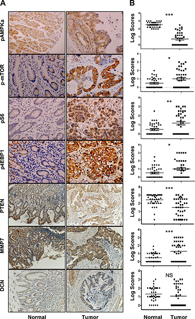 Expression profiles of pAMPKα, p-mTOR, pS6, p4E-BP1, PTEN, MMP7, and DCN in human gastric cancers and adjacent normal mucosa specimens.