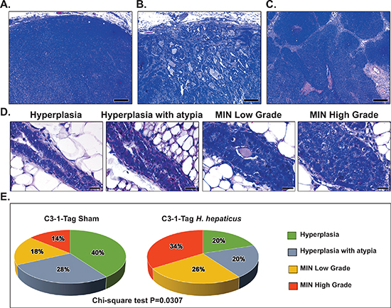 Effects of H. hepaticus on mammary gland carcinogenesis.