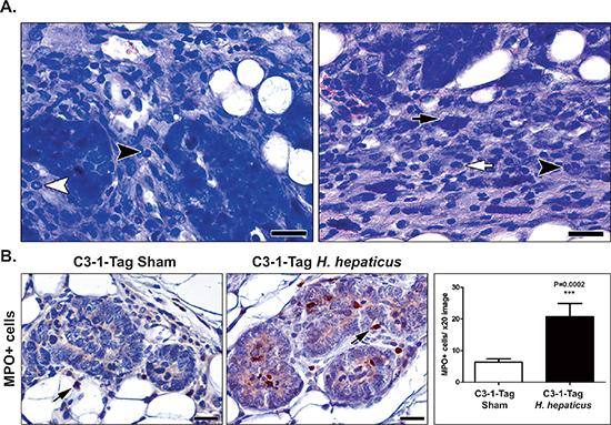 H. hepaticus infection up-regulates MIN-associated neutrophils.