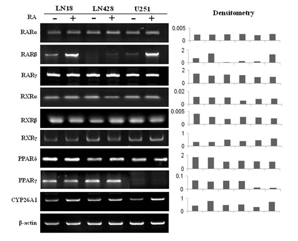 RT-PCR profiling of the expression of RARs, RXRs, PPARδ, PPARγ and CYP26A1 in LN18, LN428 and U251 cells before and after RA treatment.