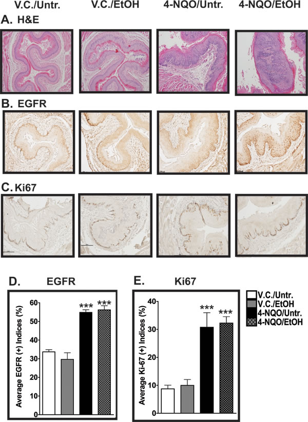 Histopathological and cell proliferation analyses of esophagi of mice treated with 4-NQO and 4-NQO followed by ethanol.