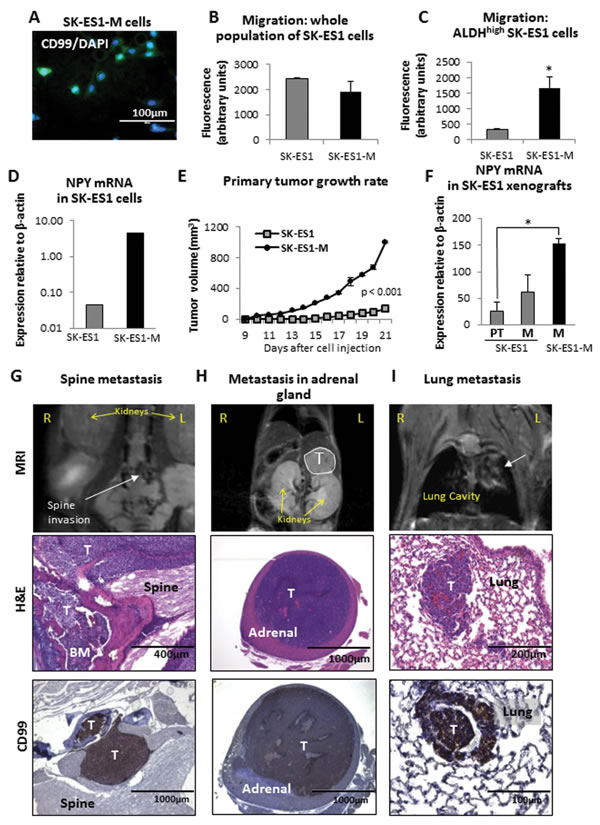 Cells derived from SK-ES1 metastases, SK-ES1-M, exhibit increased motility in the cancer stem cell fraction, enhanced growth