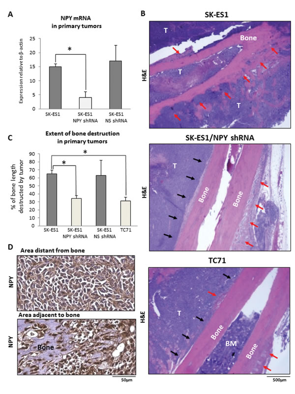 NPY knock-down reduces bone degradation in SK-ES1 primary tumors.