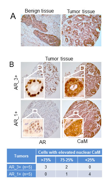 Immunohistochemistry of CaM and AR in human prostate tumor and non-tumor tissues.