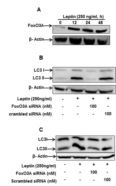 Role of FoxO3A signaling in activation of autophagic process by leptin.