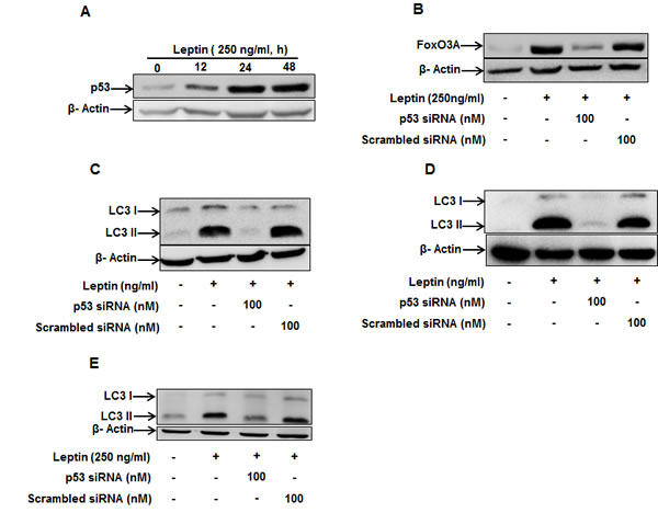 Role of p53 in the modulation of LC3 II protein expression by leptin.