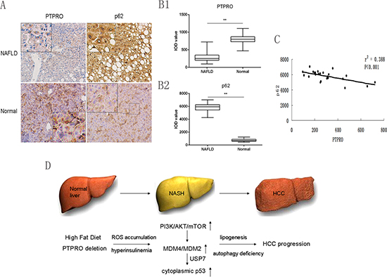 Low expression of PTPRO in hepatocytes may contribute to the inhibition of autophagy and progression of NAFLD in human samples.