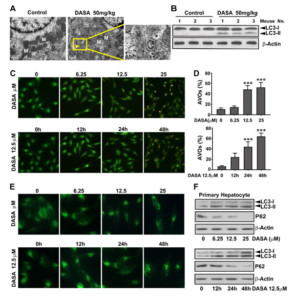 Autophagy is involved in dasatinib-driven hepatotoxicity both