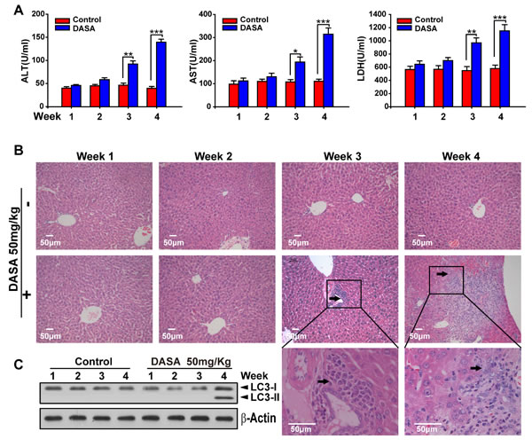 Dasatinib induced the liver injury and autophagy sequence.