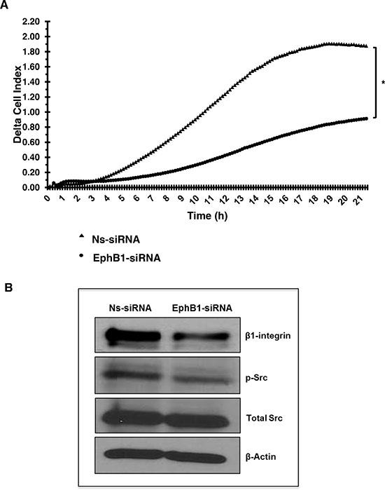 Knockdown of EphB1 receptor reduces medulloblastoma cell migration.