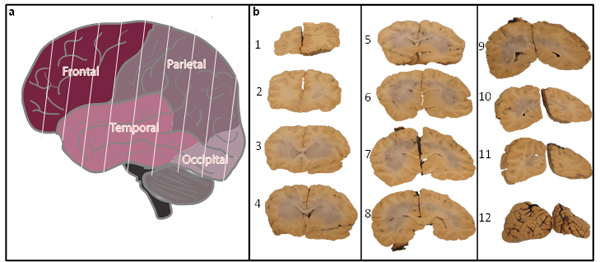Fig.2: Postmortem processing of whole cortex.