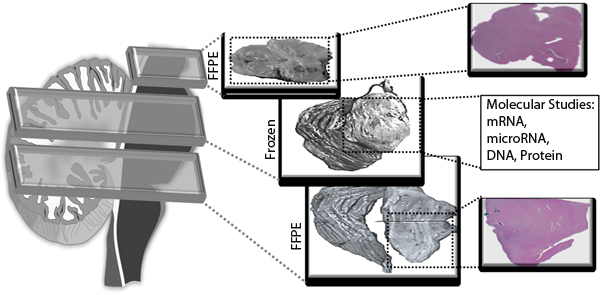 Fig.4: Detailed histological studies of brainstem tissue is enhanced by matched FFPE sections for each frozen specimen.