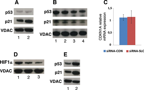 p21 and HIF-1α protein levels in SLC25A10 knockdown cells.