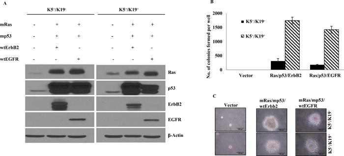 Transformation of K5+/K19− or K5+/K19+ cells with different gene combination.