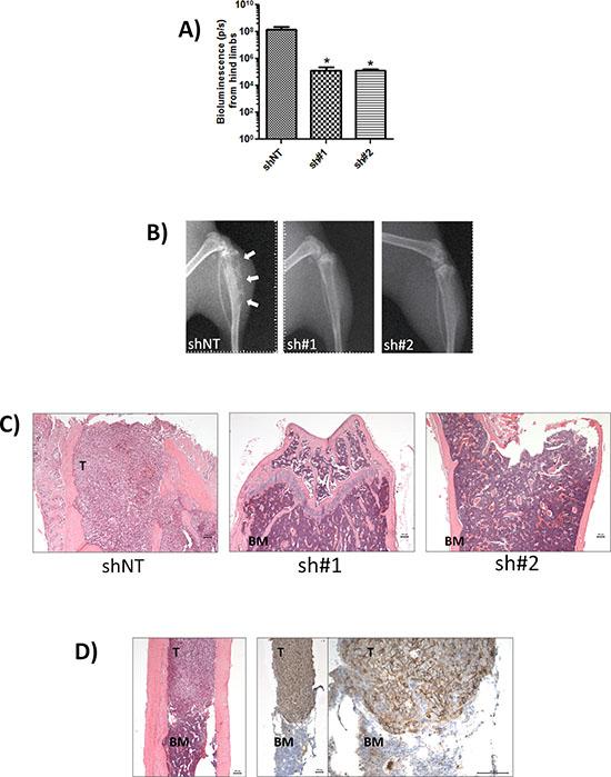 CD44 expression promotes bone metastasis.