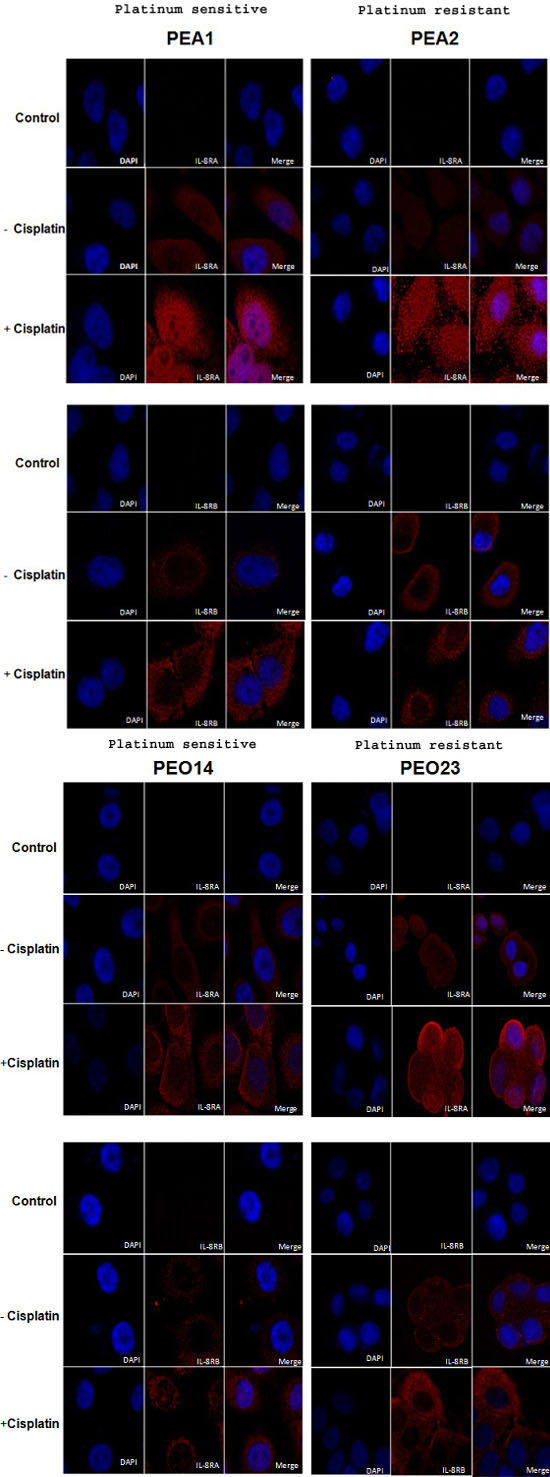 Expression of IL-8RA and IL-8RB in ovarian cancer cells pre and post cisplatin treatment.