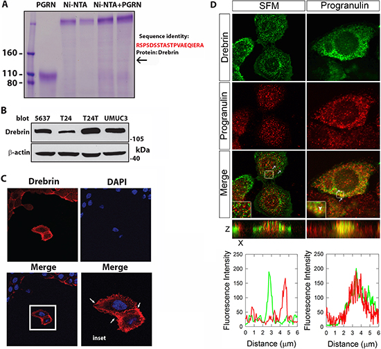 Progranulin interacts with the F-acting-binding protein drebrin.