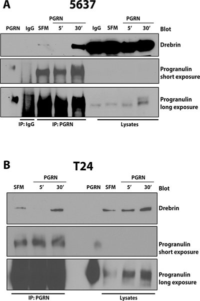 Progranulin coprecipitates with drebrin in 5637 and T24 urothelial cancer cells.