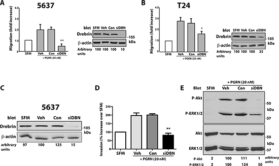 Drebrin modulates progranulin-induced motility and signaling of urothelial cancer cells.