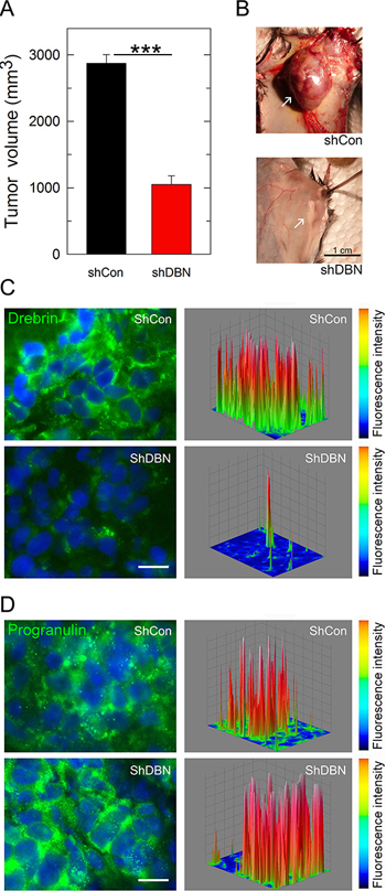 Drebrin regulates tumor formation in vivo.