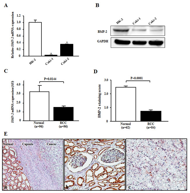 BMP-2 expression in RCC cell lines and tissues.