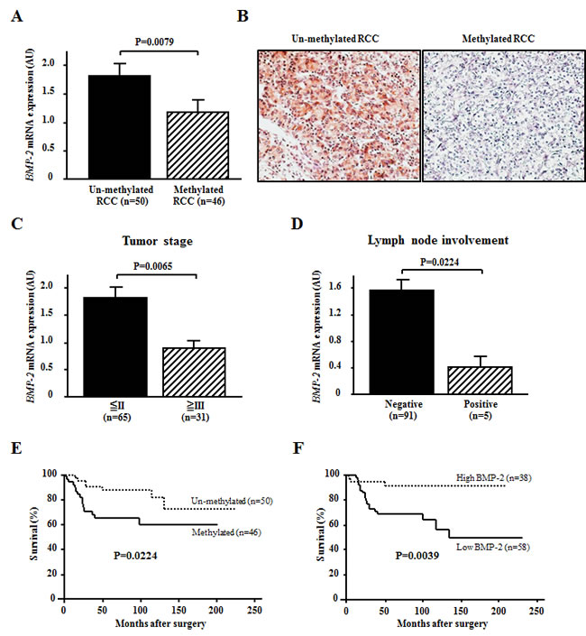 Effects of BMP-2 methylation status on the expression level of BMP-2 mRNA and association with clinicopathological findings.