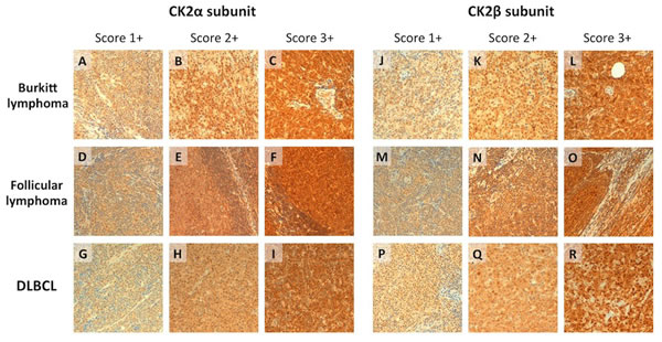 CK2α and CK2β expression by immunohistochemistry in FL, BL and DLBCL.