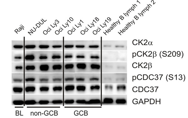 WB assays for CK2 expression in lymphoma cell-lines and normal B-cells.