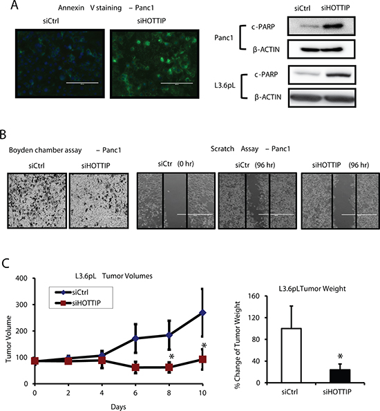 Effects of HOTTIP in pancreatic cancer cell apoptosis, migration and tumor growth.