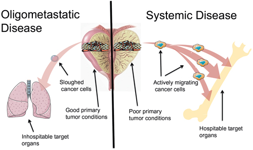 Oligometastatic disease versus systemic disease.