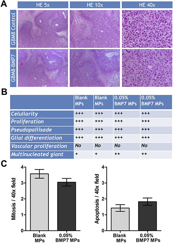 Histologic analysis of the GBM xenograft tumors treated with or without BMP7.