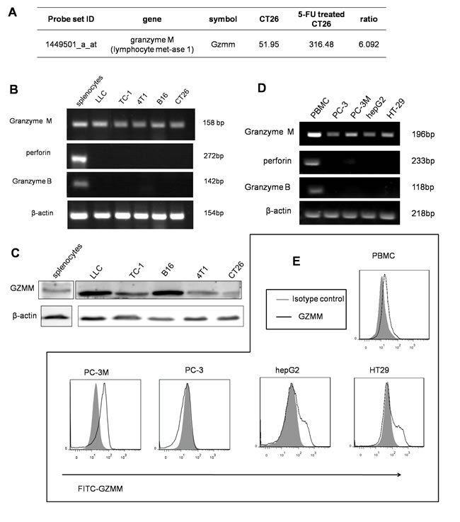 GZMM is expressed in murine and human malignant cell lines.