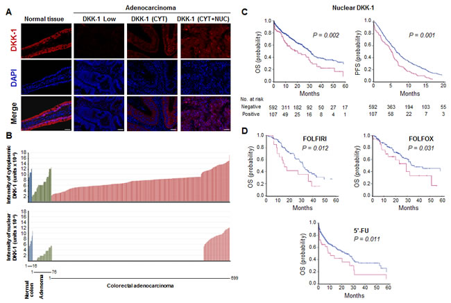 Nuclear DKK-1 expression decreases during CRC progression and associates with shorter patient PFS and OS.