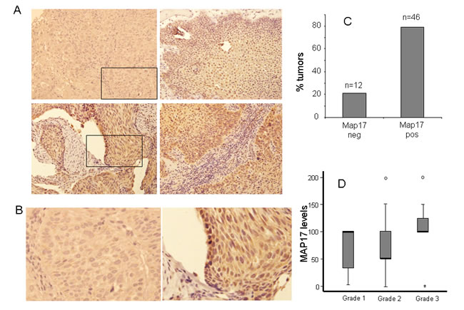 MAP17 overexpression in larynx tumors.