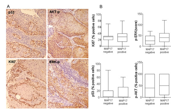 p53, Ki67, p-ERK or p-AKT do not show correlation with MAP17 expression in larynx tumors.
