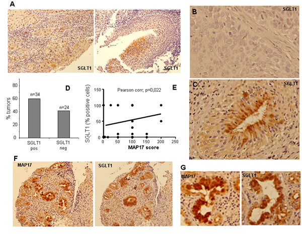 SGLT1 overexpression in larynx tumors.