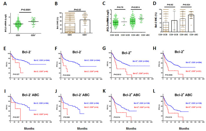 Correlation between CD5 and Bcl-2 overexpression and the prognostic significance of CD5 expression in DLBCL independent of Bcl-2 overexpression.