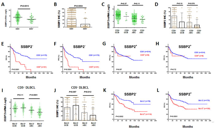 Correlation between CD5 and SSBP2 expression in DLBCL.