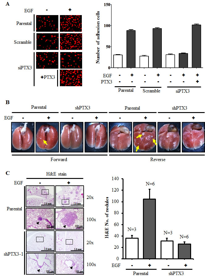 PTX3 mediates EGF priming for tumor dissemination to the lungs.
