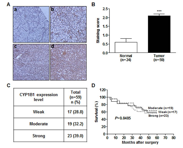CYP1B1 protein is up-regulated in RCC tissues.