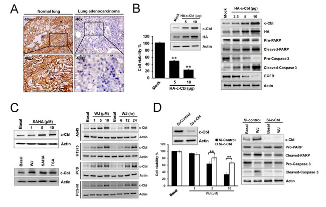 Induction of c-Cbl inhibited cell proliferation and promoted apoptosis in lung adenocarcinoma cells.
