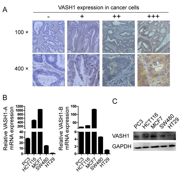 Expression of VASH1 in colon cancer cells.