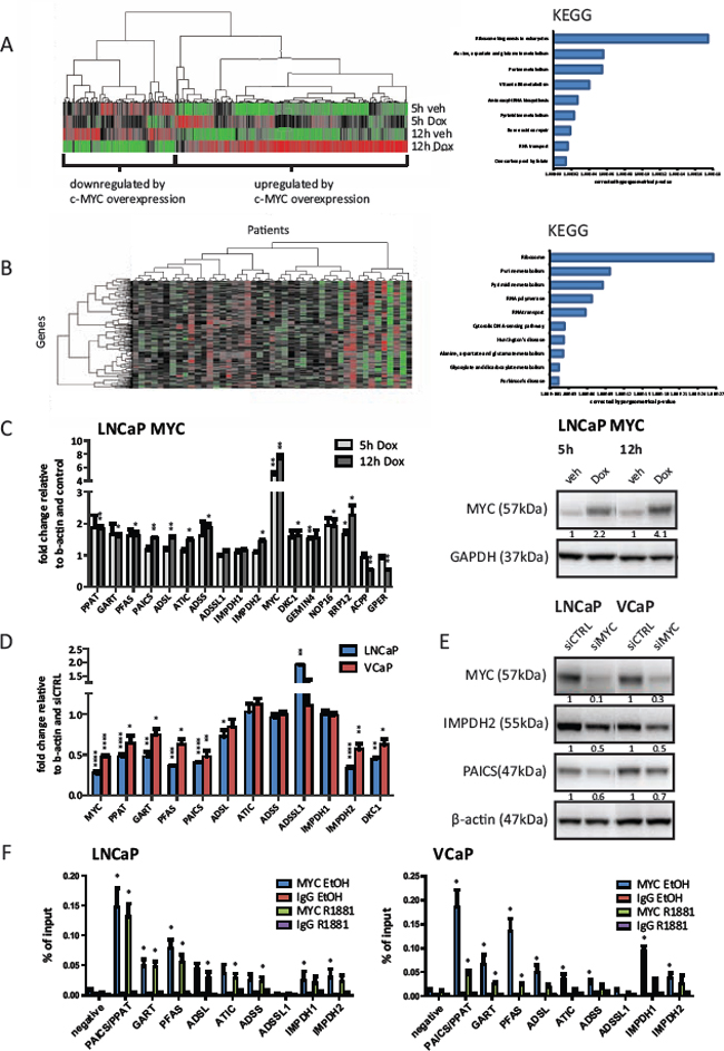 The expression of purine biosynthesis enzymes in prostate cancer cells is directly regulated by MYC.