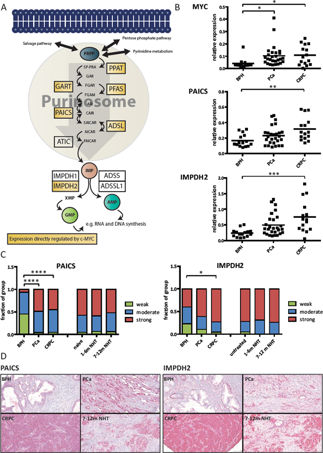 PAICS and IMPDH2 are overexpressed in prostate cancer patients.