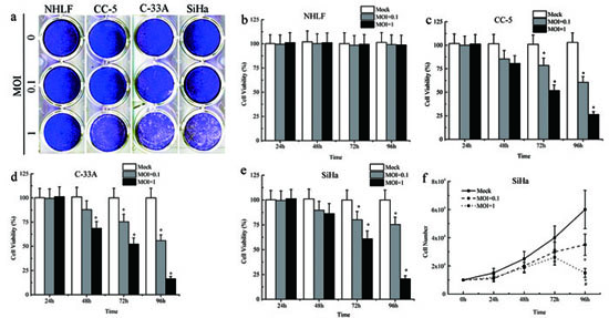 Cytopathic effects and cell death induced by MV-Edm.