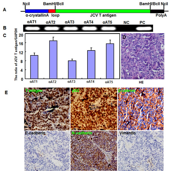 The spontaneous lens tumor of JCV T antigen transgenic mice by α-crystallin A promoter.