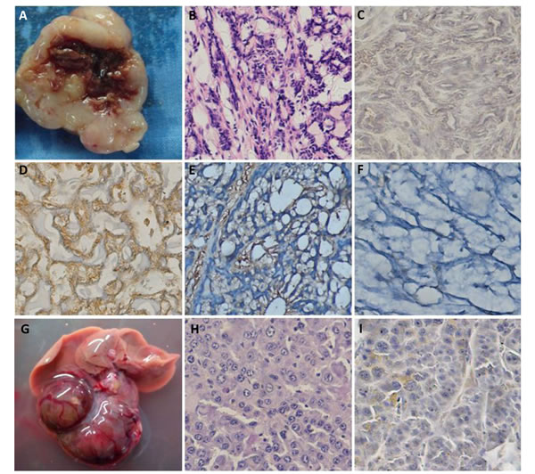 The spontaneous salivary carcinoma and hepatocellular carcinoma in αAT5 JCV T antigen transgenic mice.